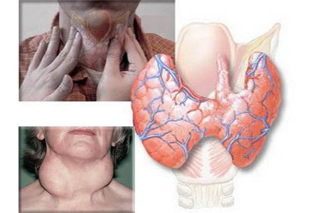 Autoimuninis tiroiditas