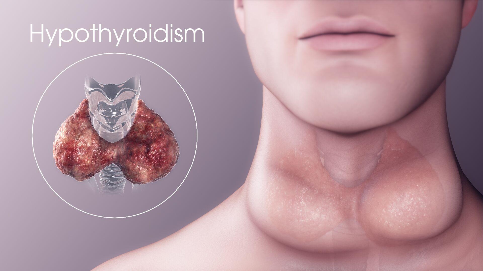 hipotirozė