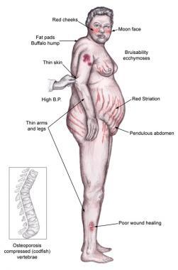kušingo sindromas